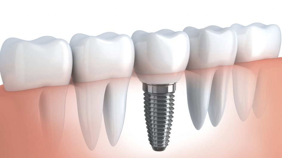Dental Implants for Life
